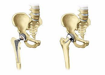Протезы тазобедренных суставов